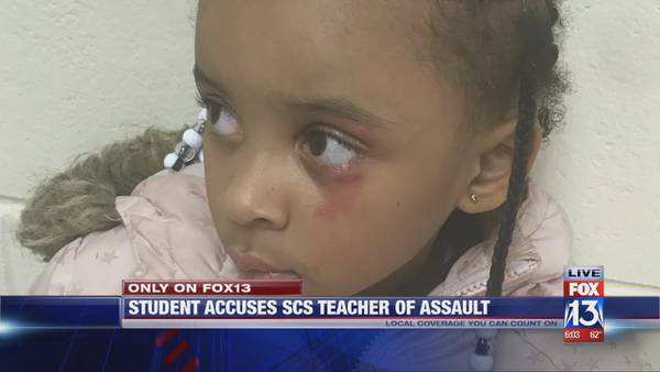 Local kindergarten student hit in the face with ruler for 'tattletaling,' family says