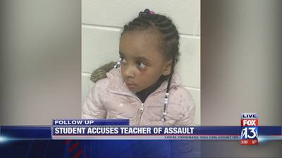'Her eczema was acting up': Memphis teacher denies hitting 5-year-old girl in the eye with ruler