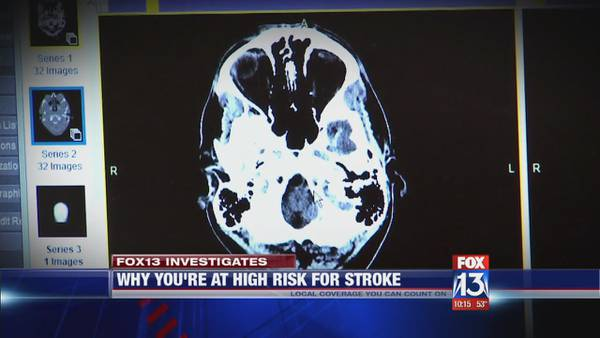 FOX13 Investigates: Why you're at high risk for stroke